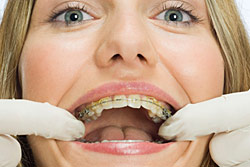 ortodontiy_people
